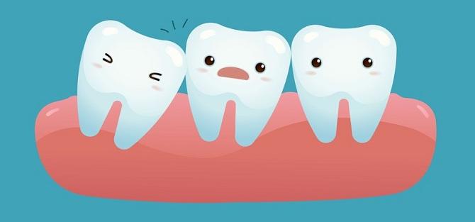 nhổ răng số 8 hết bao nhiêu tiền?