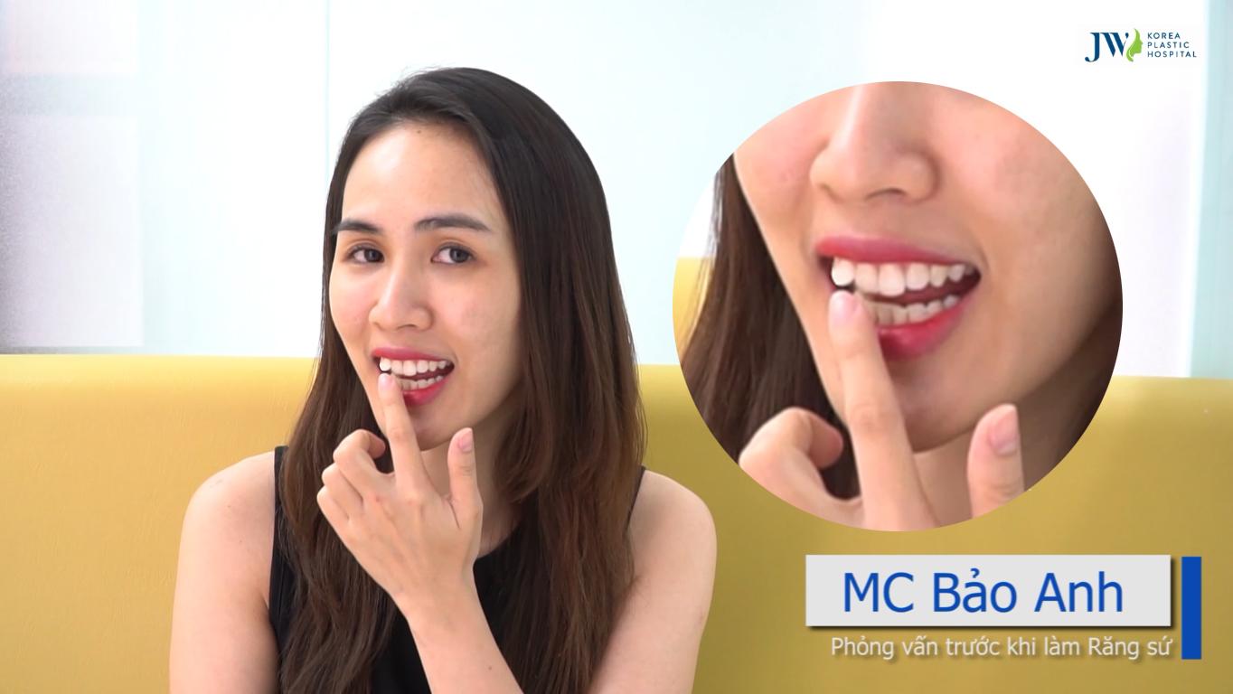 Mặc dù vậy, cô vẫn chưa hài lòng với chiếc răng khểnh trên khuôn hàm. Với lại, vì tính chất công việc của 1 MC, nên thường xuyên phải ghi hình.