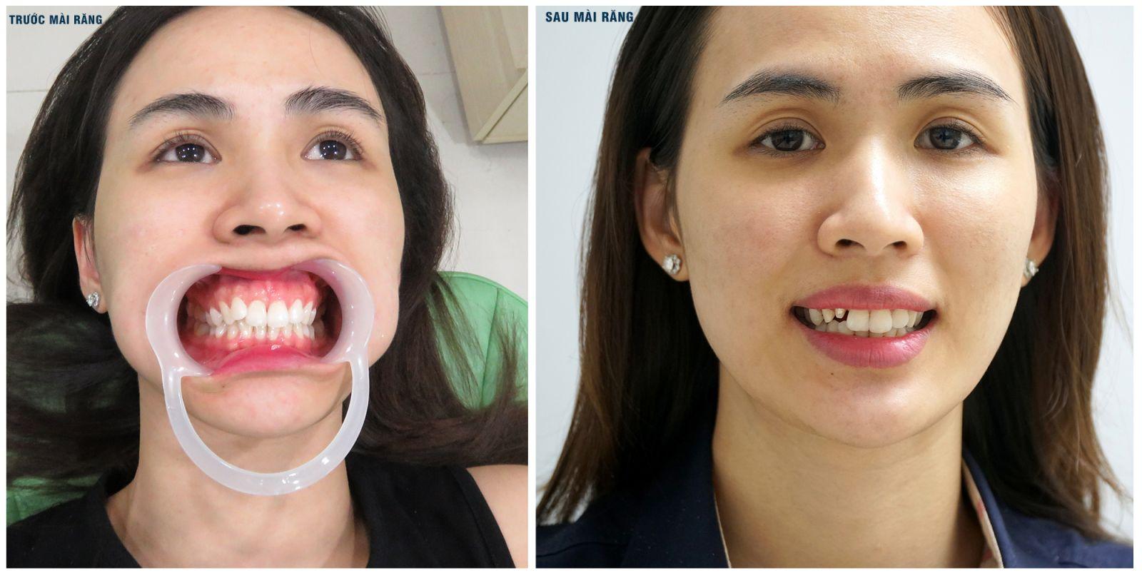 Nữ MC quyết định thay thế chiếc răng khểnh bằng cách bọc răng sứ