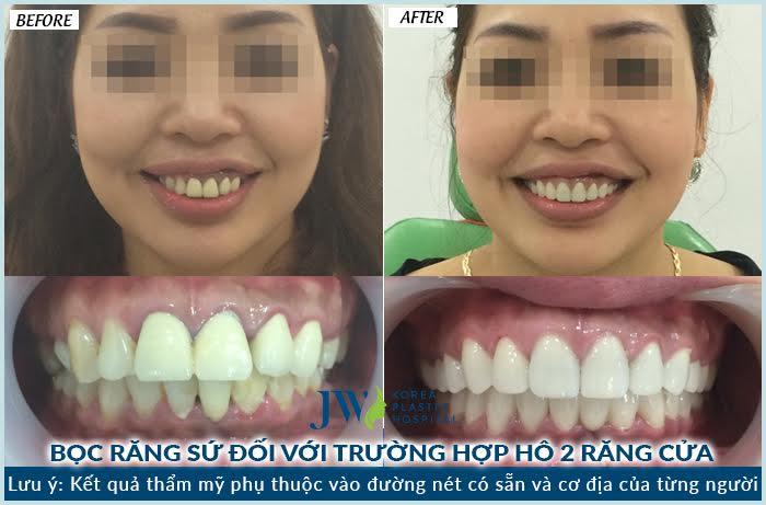 Bọc răng sứ tại jw