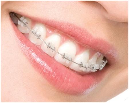 Sử dụng niềng răng mắc cài sứ đảm bảo thẩm mỹ cao