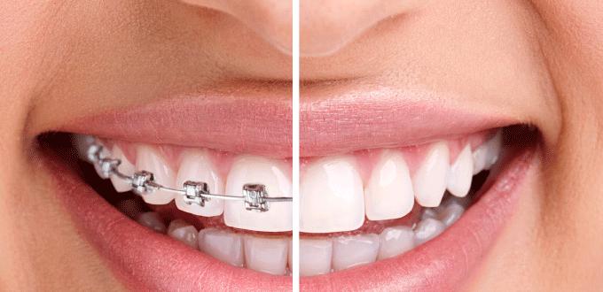 Niềng răng thanh toán theo đợt là giải pháp để bạn dễ dàng sử dụng dịch vụ niềng răng thẩm mỹ