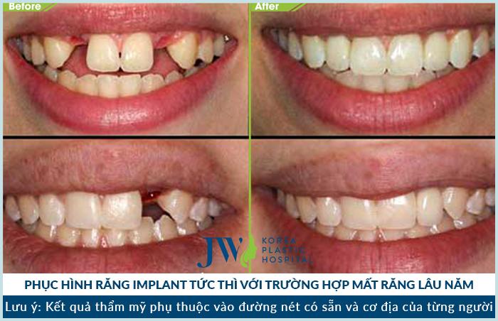 Cấy ghép implant tại jw