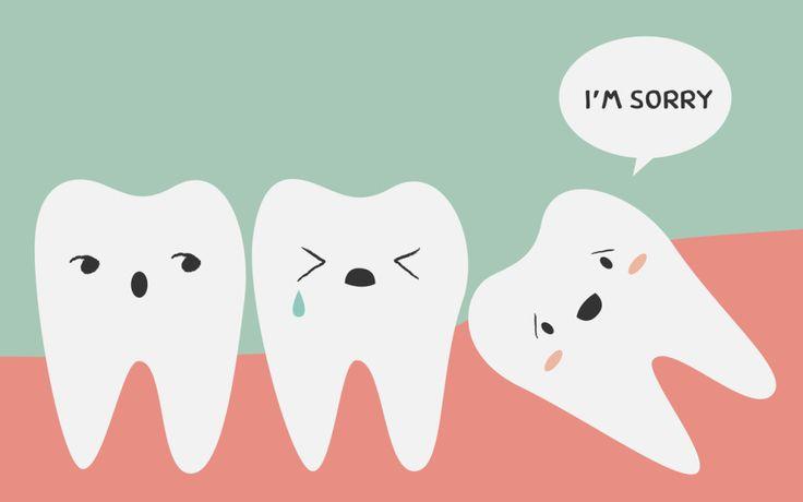 Răng khôn là răng mọc sau cùng nên thường không còn chỗ trống trên cung hàm dẫn đến trường hợp bị mọc lệch.
