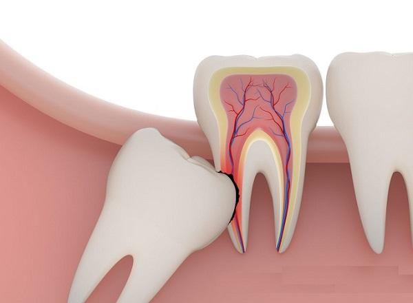 Răng số 8 mọc lên có xu hương đâm và o răng bên cạnh chân răng số 7