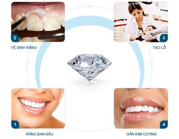 Quy trình đính đá vào răng