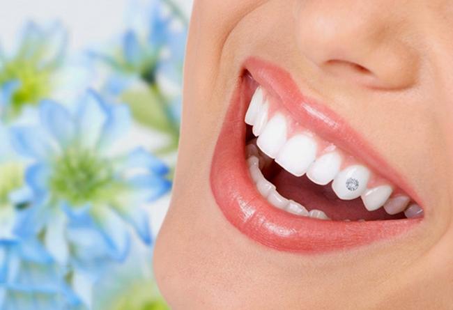 Có thể sử dụng kim cương, đá quý hay các vật liệu khác để đính lên răng