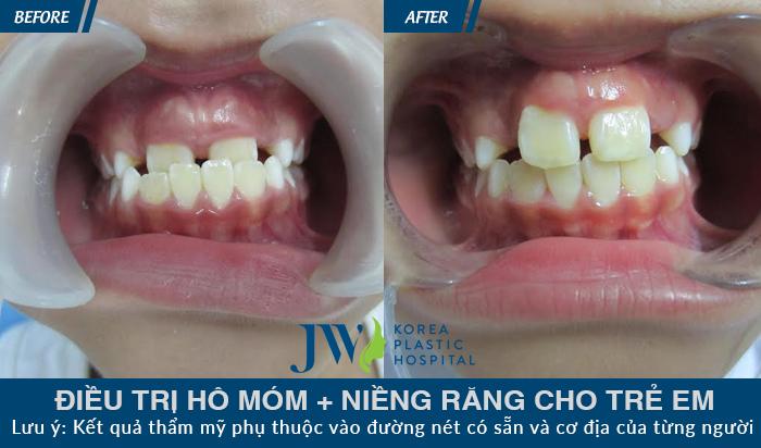 Niềng răng tại JW