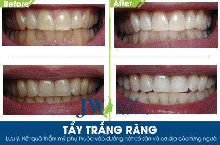 Tẩy trắng răng tại JW