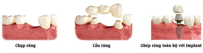 phương pháp lam răng sứ