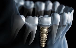 Cấy ghép Implant - Nghệ thuật trong phục hình răng thẩm mỹ