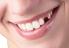 Răng đẹp, cười duyên và siêu tiết kiệm khi cấy ghép Implant
