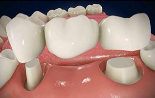 Trồng răng sứ - Giải pháp