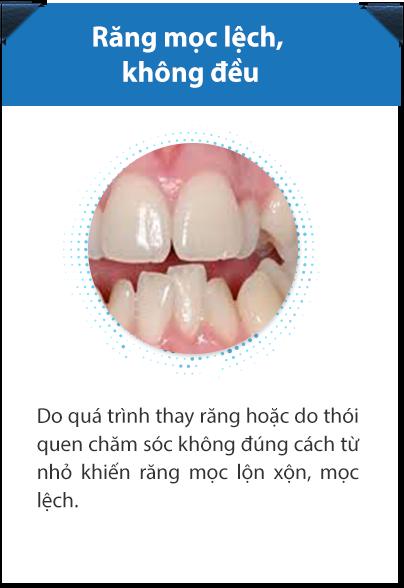 Hình ảnh bệnh lý răng miệng