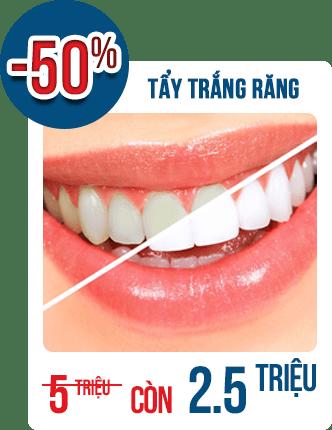 Hè sang Răng trắng sáng