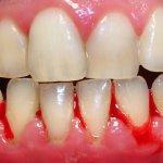 Hiện tượng chảy máu chân răng do đâu – Nha Khoa Hàn Quốc