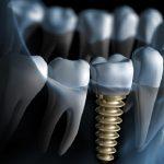 Bao nhiêu tuổi có thể cấy ghép Implant an toàn