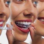 Quy trình niềng răng Invisalign tại Nha khoa JW
