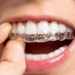 Niềng răng vô hình – Đỉnh cao chỉnh nha trong niềng răng thẩm mỹ