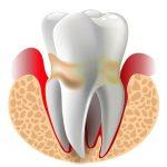 Bệnh nha chu và cách điều trị bệnh lý răng miệng hiệu quả
