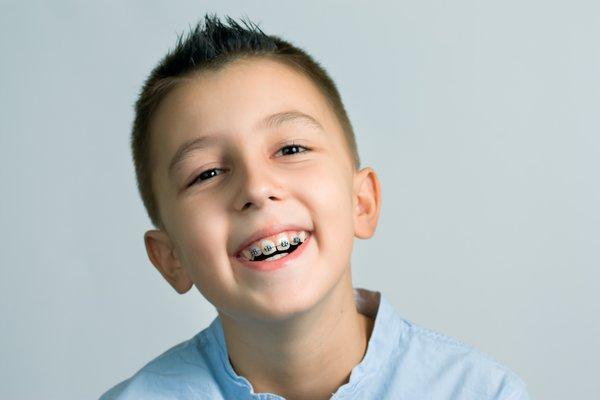 Niềng răng cho trẻ là phương pháp nắn chỉnh răng về đúng vị trí trên cung hàm
