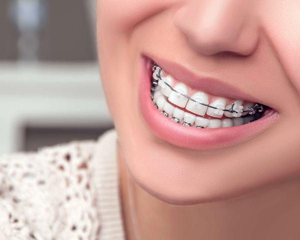 Mô tả niềng răng là gì
