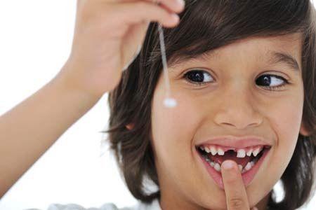 Nhổ răng sữa cho trẻ giúp răng mọc đúng vị trí
