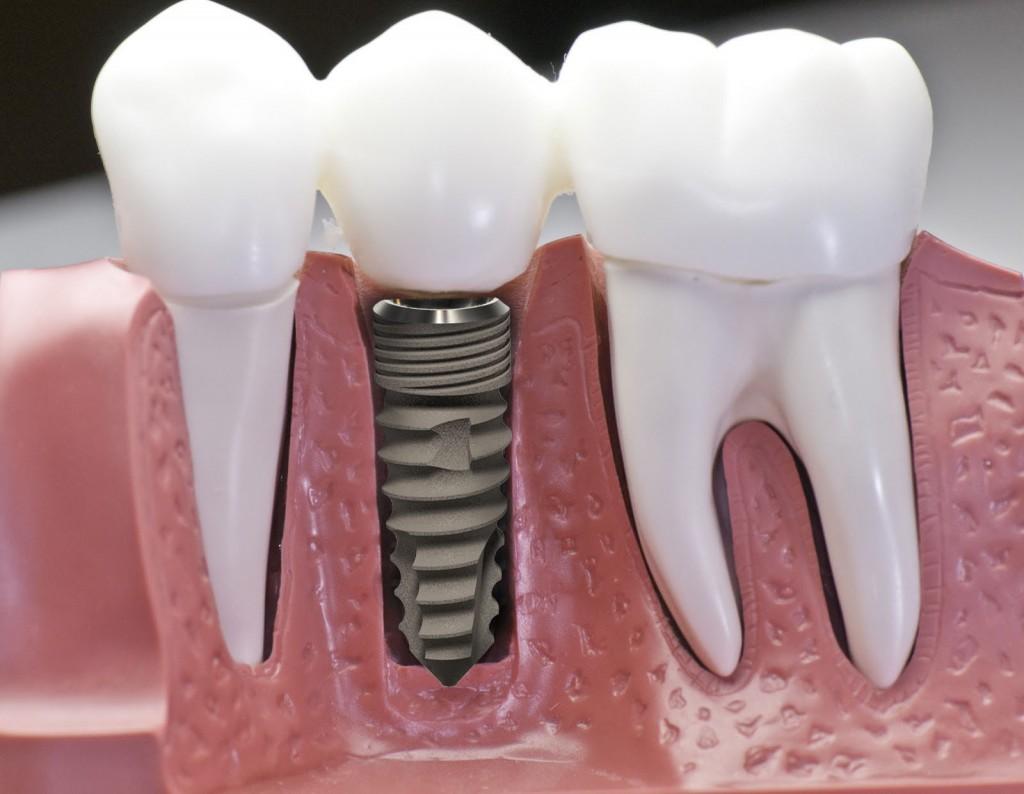 Cấy ghép implant ở đâu tốt
