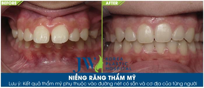 Niềng răng ở đâu tốt nhất TP.HCM