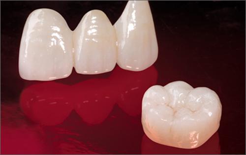 Bọc răng sứ ở đâu tốt TP.HCM