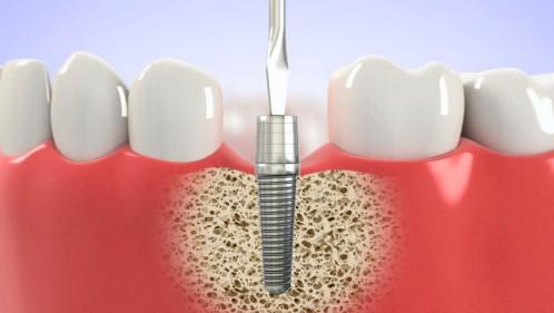 Cấy ghép implant là gì