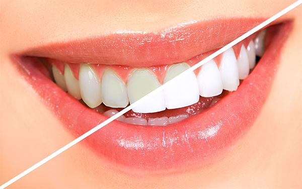 cách làm trắng răng hiệu quả tại nhà