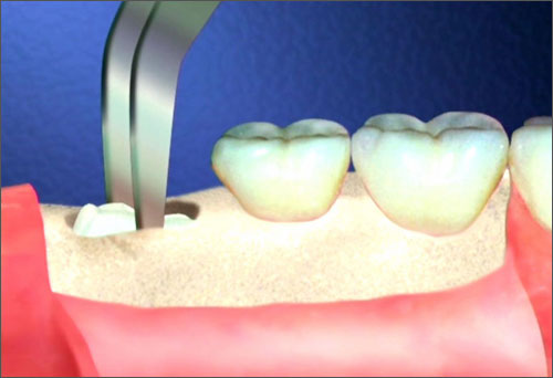 Nhổ răng khôn hết bao nhiêu tiền
