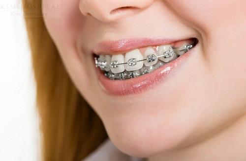 Niềng răng mất bao lâu