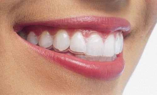 Niềng răng Invisalign bao nhiêu tiền