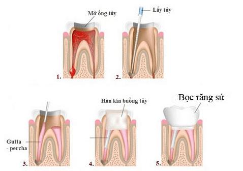Hình ảnh mô phỏng quá trình bọc răng sứ