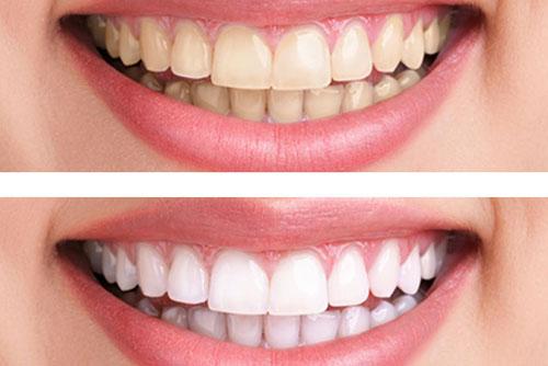 Tẩy trắng răng giá rẻ