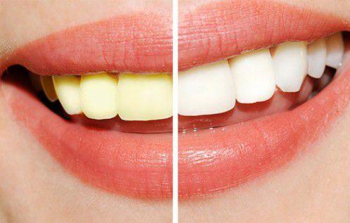 Tẩy trắng răng bao nhiêu tiền