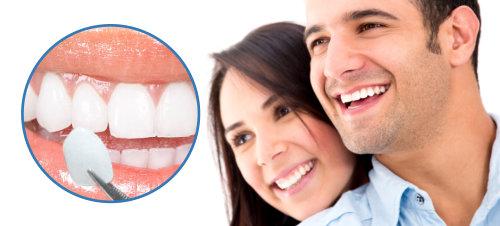 Bọc răng sứ Veneer và những ưu điểm bạn cần biết