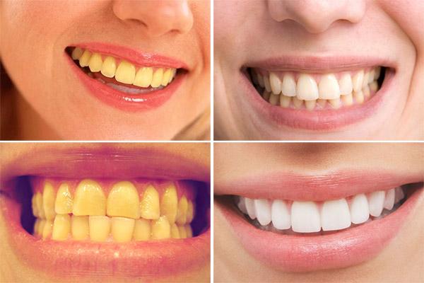 Làm trắng răng hết bao nhiêu tiền