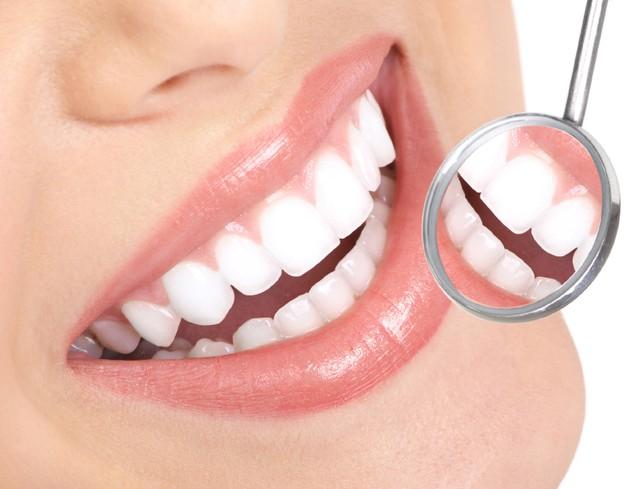 Làm trắng răng giá bao nhiêu tiền