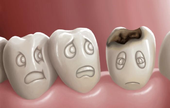Nhổ răng bao nhiêu tiền
