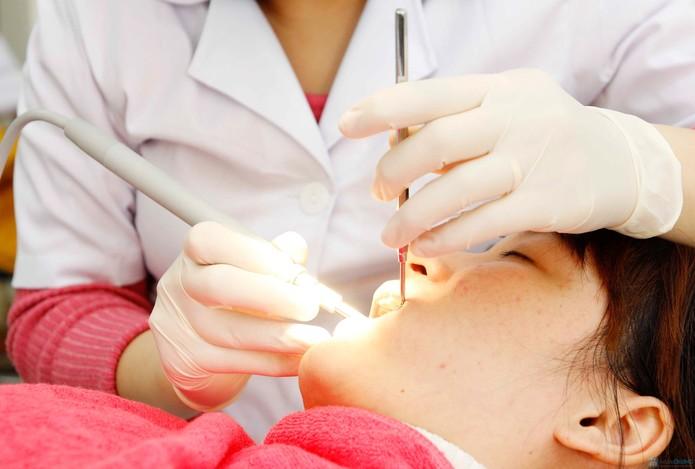 Hướng dẫn cách nhổ răng tại nhà