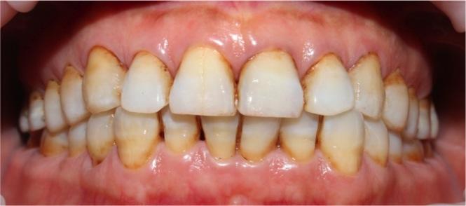 Làm trắng răng trong 5 phút bằng cách nào