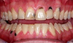 Cách chữa sâu răng hiệu quả nhất