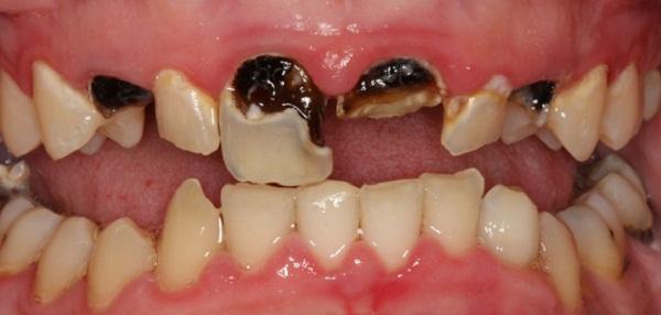 nhổ răng sâu