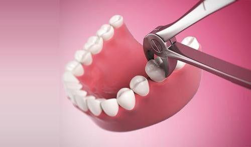 Nhổ răng không đau ở đâu