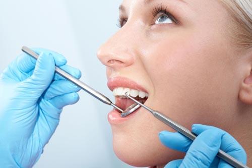 Nhổ răng số 7