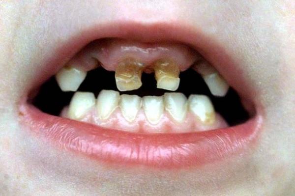 chữa sâu răng dân gian