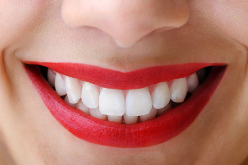Thuốc tẩy trắng răng Opalesence